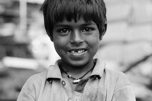前歯の欠けた男の子