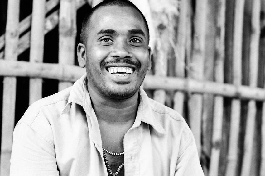 Man laughing while showing white teeth