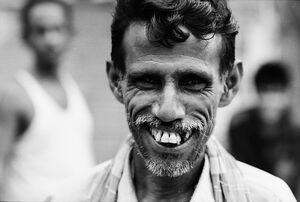 Man scrunching face