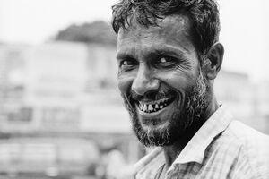 笑う男の歯茎