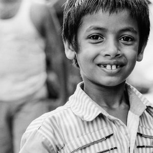 Boy smiling while showing front teeth