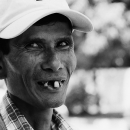 Smile With Chipped Front Teeth @ Myanmar