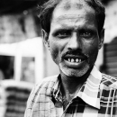 Man With Jacked Up Teeth @ India