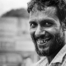 Alveolar Arch Of A Chuckling Man @ Bangladesh