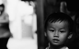 Bewildered Boy In The Lane