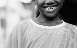 Smile Of A Boy Wearing A Taqiyah