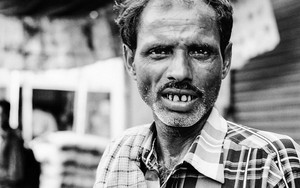 Man With Jacked Up Teeth
